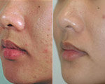 Acne Scar Before After
