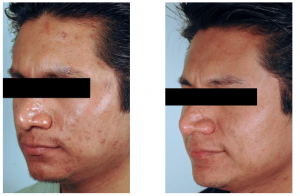 acne-scar-treatment-3