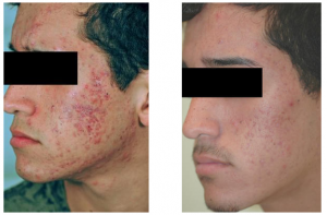 acne-scar-treatment-4