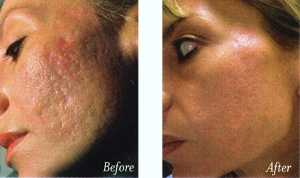 before-and-after-laser-treatment