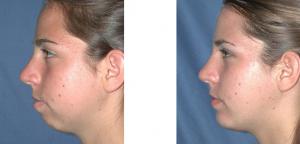 chin-implant-4