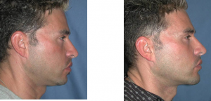 chin-implant-5