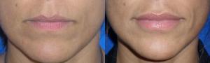 lip-augmentation-2