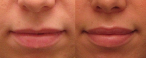 lip-augmentation-3