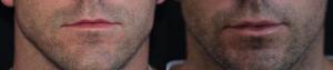 lip-augmentation-4