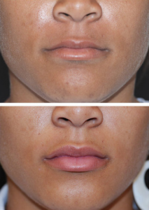 lip-augmentation-5