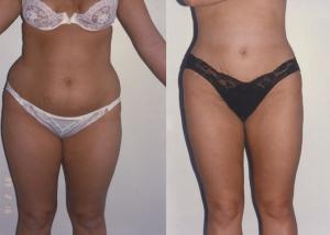 liposuction-10