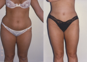 liposuction-12