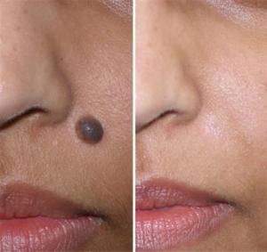 mole-removal-1
