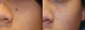 mole-removal-3