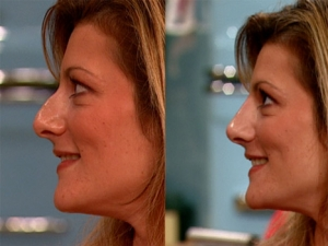 rhinoplasty-before-after