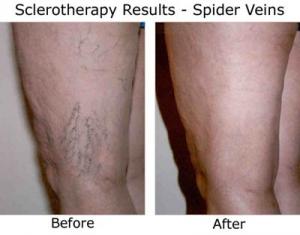 spider-vein-treatment-legs
