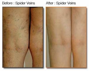 spider-veins-3