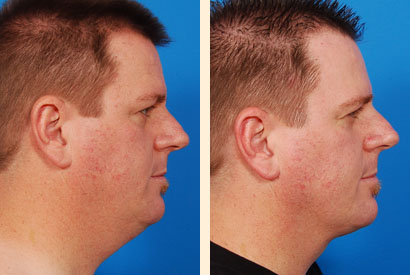 Facial Liposuction Before and After