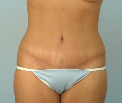 Breast Implants And Tummy Tuck Cost