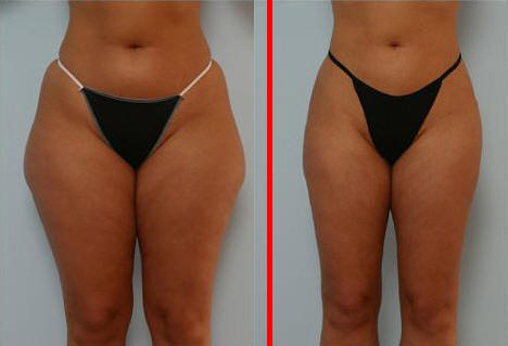 Thigh Liposuction Before and After