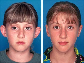 Otoplasty before and after in child