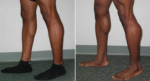 Calf Implants Before and After