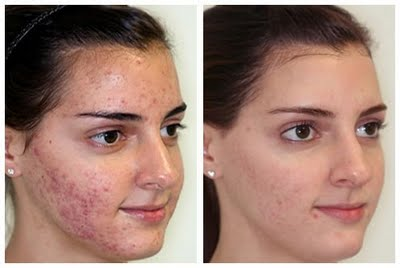 Microdermabrasion for Acne Before and After