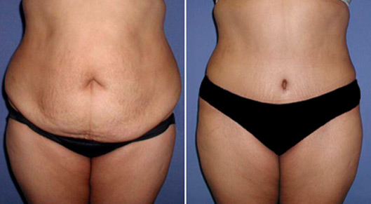 Mini Tummy Tuck Before and After