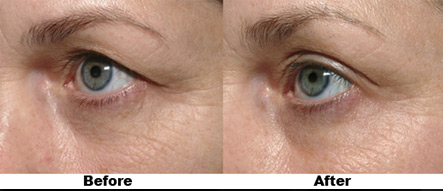 Thermage Before and After Around the Eyes