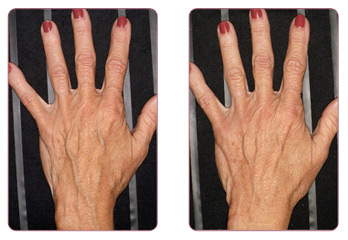 Thermange Before and After on Hands